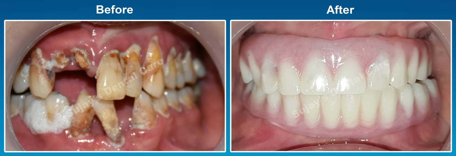 before-and-after-image-dental-implants-case-smile-story-1