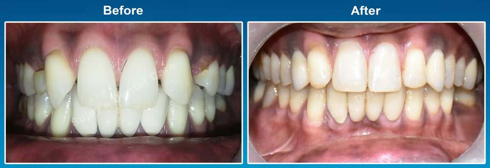 before-and-after-image-dental-implants-case-story-2