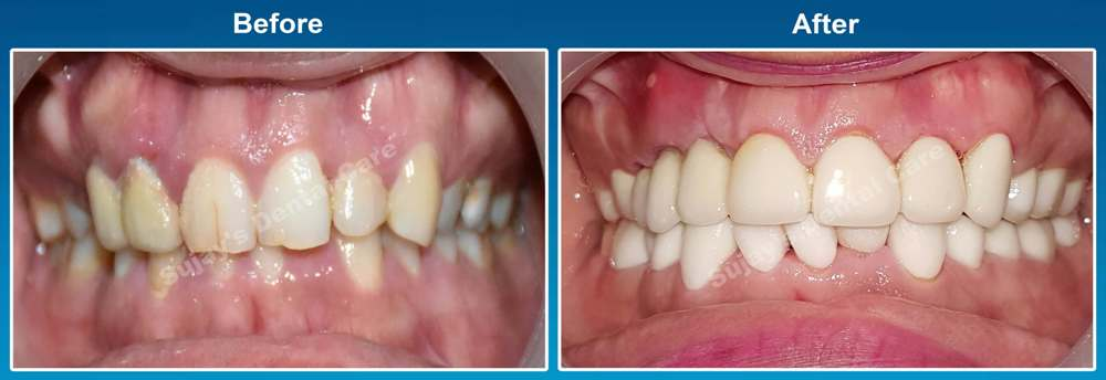 before-and-after-image-dental-implants-case-story-3