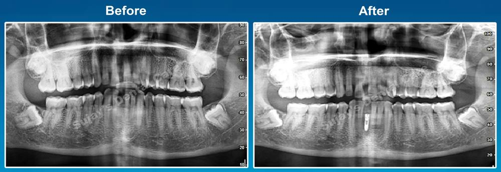 before-and-after-opg-image-dental-implants-case-smile-story-12