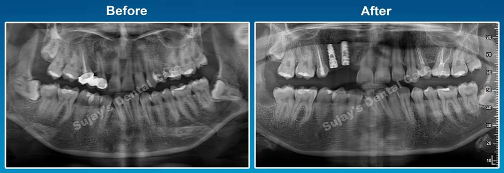 before-and-after-opg-image-dental-implants-case-smile-story-3