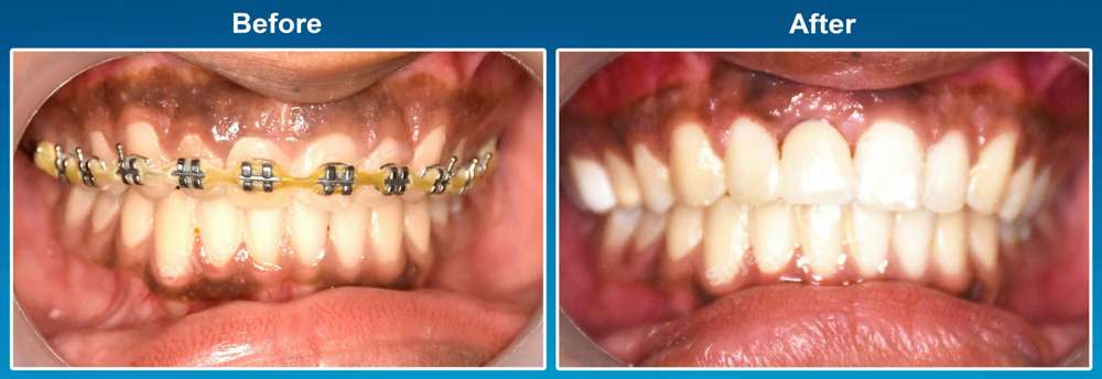 before-and-after-image-dental-implants-case-story-7