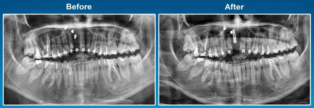 before-and-after-opg-image-dental-implants-case-smile-story-7