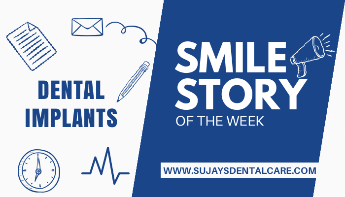 Replacement of the missing anterior tooth using dental implant