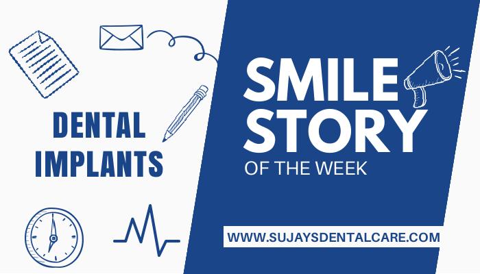 Dental Implant in the Esthetic Zone