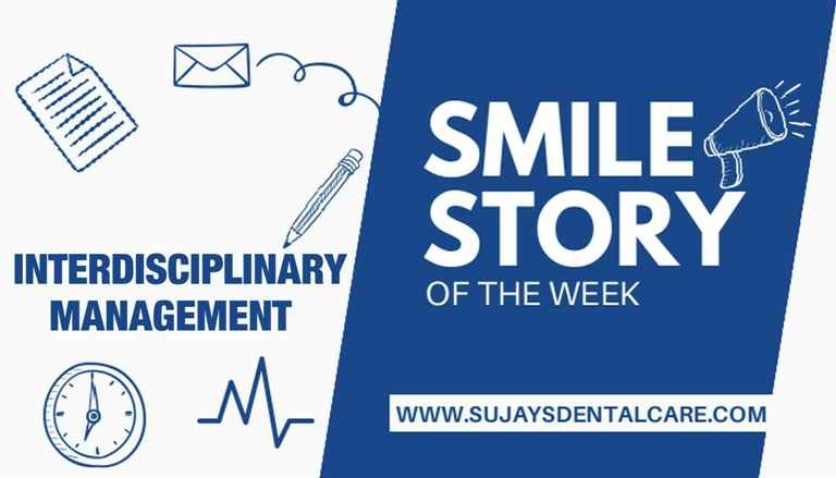 Periapical surgery in the lower anteriors