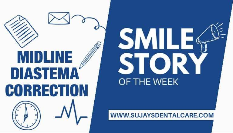 Midline Diastema Correction