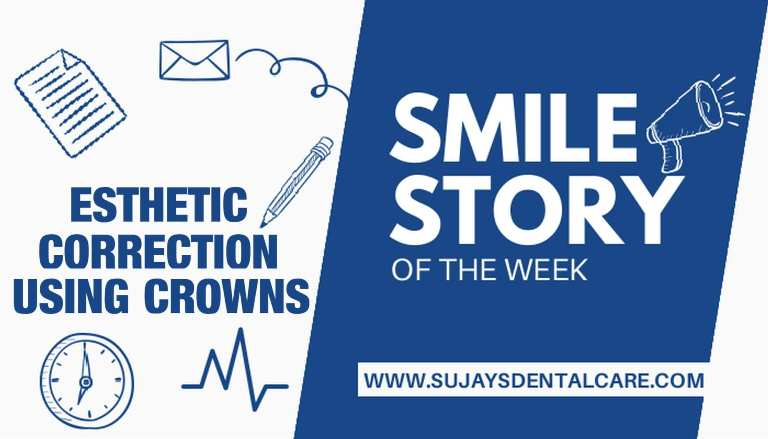 Esthetic Correction Using Crowns