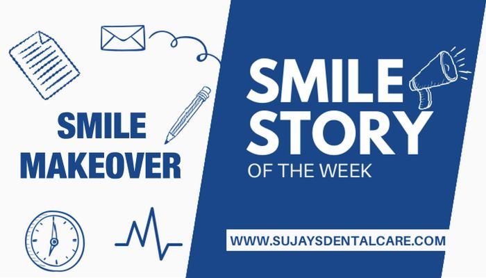 Smile Makeover Using Clear Aligners