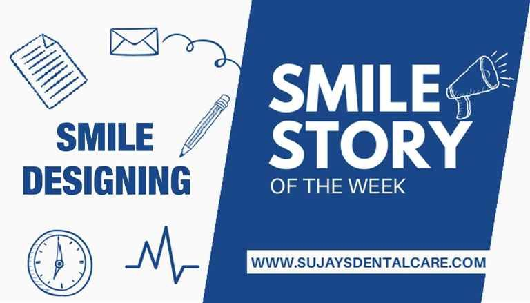 Smile designing of upper front teeth