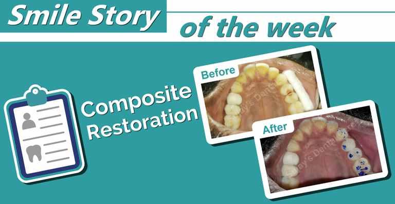 Composite restoration of opposing class – II cavities