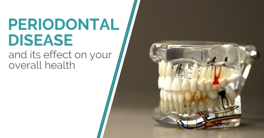 Periodontal disease and its effect on your overall health - Blog Post - Cover Image